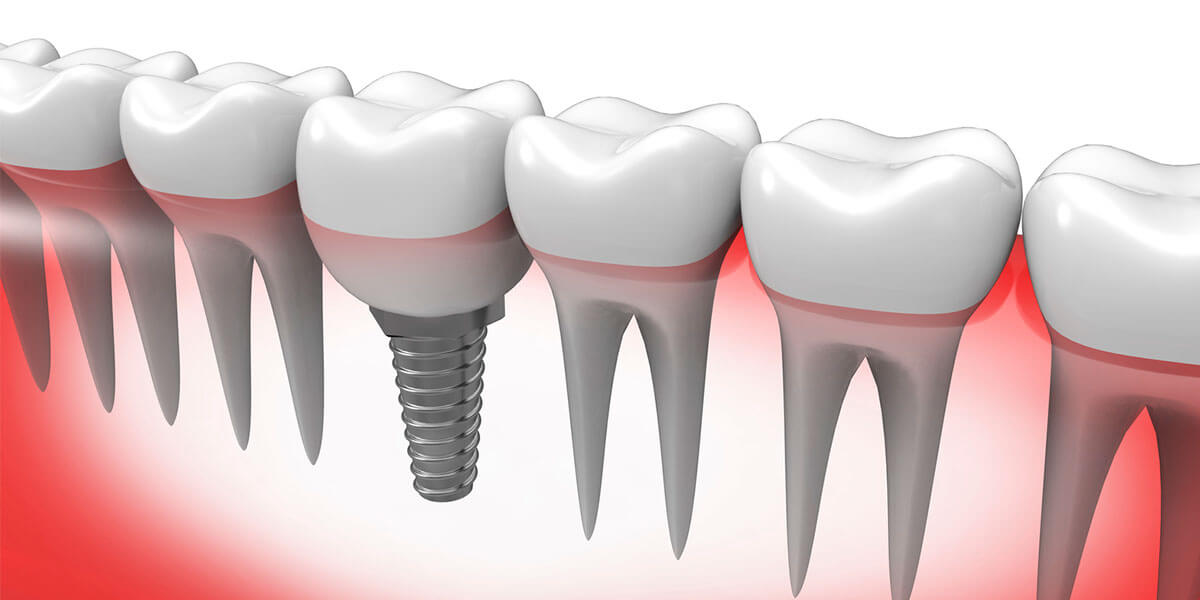 Single Dental Implants in Holyoke, MA
